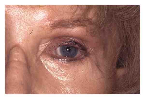 Comment masser cicatrice blépharoplastie